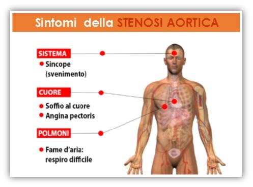 Stenosi aortica sintomi